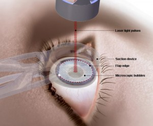 LASIK History from Behler Eye & Laser Center